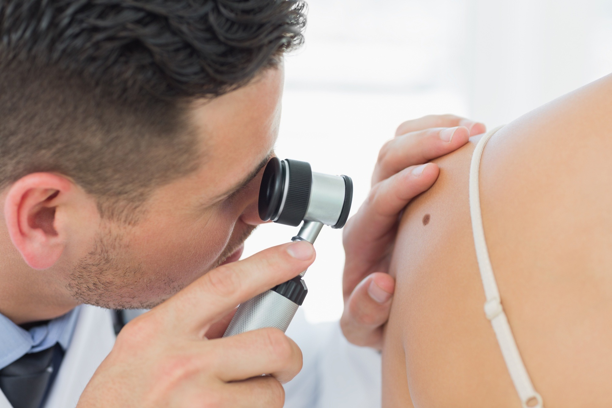 Understanding the Different Skin Cancer Types and How to Prevent